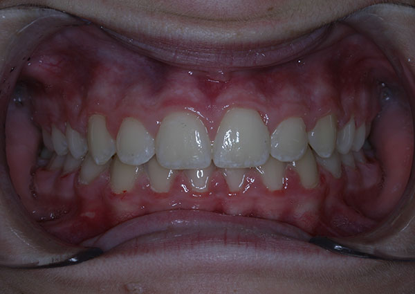 Results photo of patient after orthodontic treatment from Amborn Orthodontics in Salem