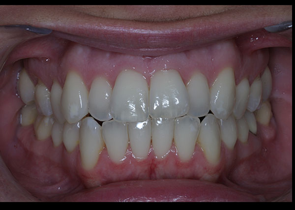 Before photo of patient prior to orthodontic treatment from Amborn Orthodontics in Salem