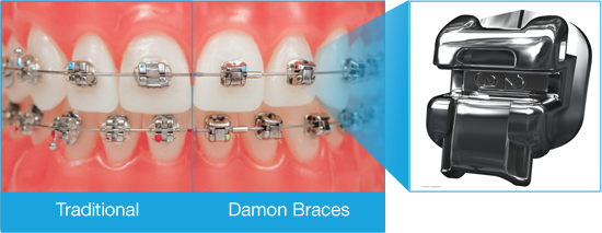 Comparison of Damon self-ligating braces compared to traditional metal bracket braces from Amborn Orthodontics