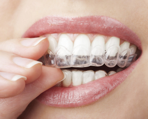 Smiling mouth with clear orthodontic aligners from Amborn Orthodontics